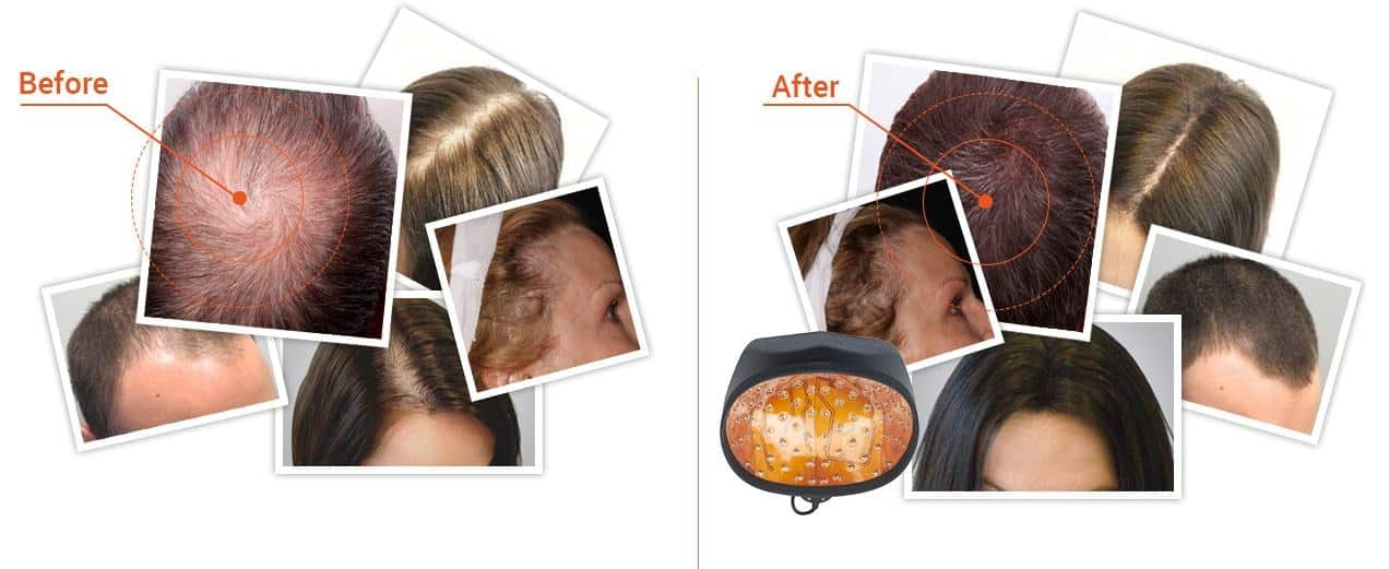 before and after laser cap treatment